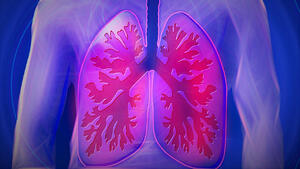 Low-Dose CT LDCT Lung Cancer Screening Guidelines Are Changing