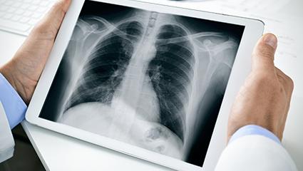 incidental-lung-nodules-radiology